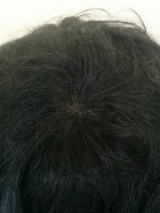 全体増毛でふさふさ